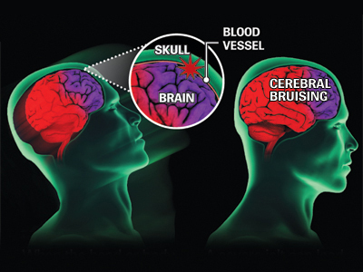 Concussions in Athletes. Are They Preventable?
